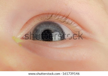 Pink eye (Conjunctivitis) infection on a baby - stock photo