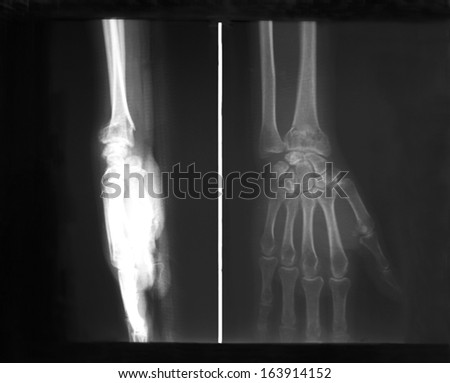 Plain X-ray film of distal forearm and hand, antero-posterior (AP) and lateral view: demonstrated fracture of distal radius bone (Colles fracture), non-displacement. - stock photo