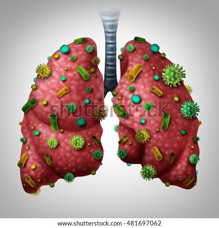 Pneumonia infection medical concept as human lungs infected by virus and bacteria as a lung disease diagnosis with 3D illustration elements.
