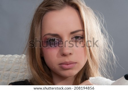 Poor young scared girl with black eye thinking about her heavy-handed father and crying - stock photo