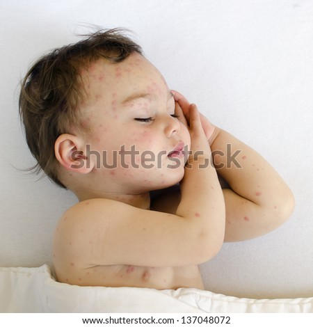 Portrait of a sleeping child with red spots on his skin of chicken pox. - stock photo