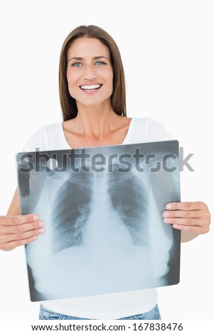 Portrait of a smiling young woman holding lung x-ray over white background - stock photo
