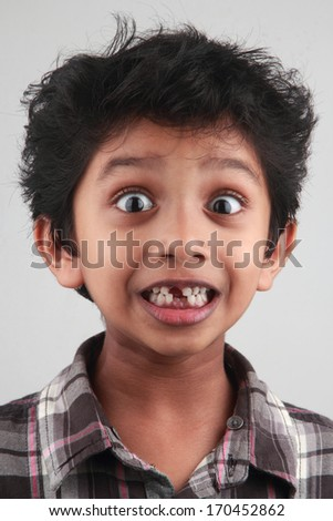 Portrait of a surprised boy without some teeth  - stock photo