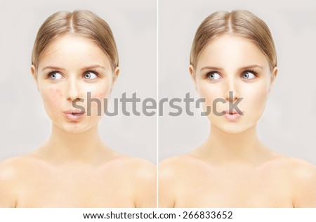 Portrait of beautiful teenage girl with problem and clear skin.Girl without and with makeup - stock photo