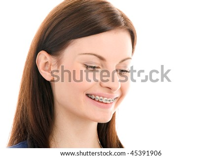 Portrait of beautiful young brunette with brackets on teeth - stock photo