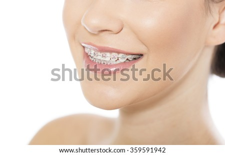 Portrait of beautiful young woman wearing braces, isolated on white