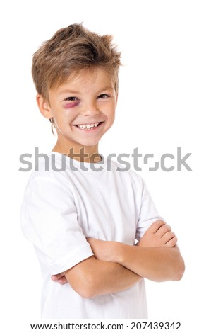 Portrait of boy with bruise, isolated on white background