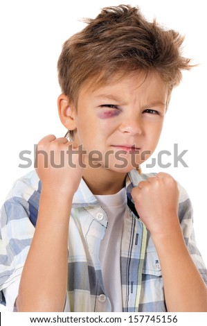 Portrait of boy with real eye bruise, isolated on white background     - stock photo