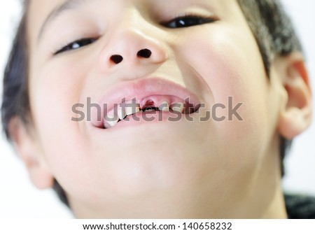 Portrait of cute little boy losing his first tooth - stock photo