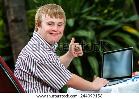 Portrait of handicapped student doing thumbs up sign next to laptop outdoors. - stock photo