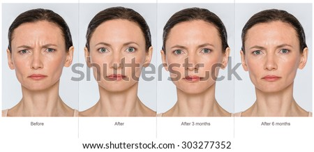 Portrait of middle aged woman before and after cosmetic surgeon or plastic surgery in long term - 3 and 6 months after treatment. Illustration after lips volume injection, botox, blemishes removal.  - stock photo