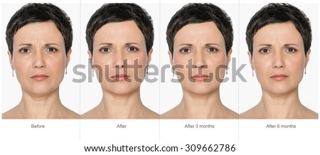 Portrait of middle aged woman before and after cosmetic surgeon or plastic surgery in long term - 3 and 6 months after treatment. Illustration after lips volume injection, botox, lifting.