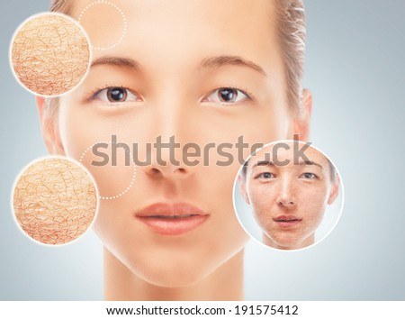 Portrait of woman before and after cosmetic procedure, improvement of facial skin, concept of skincare - stock photo