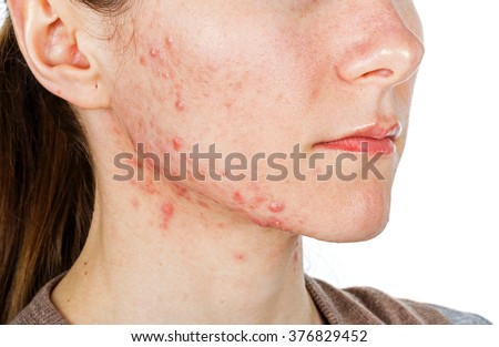 Portrait of young girl with skin problem