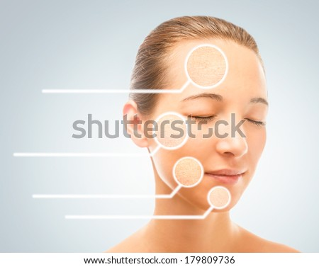 Portrait of young woman with dry problem skin, skincare concept - stock photo