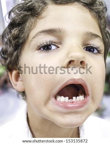 Portrait shot of a small child with mouth open showing off his lost tooth.