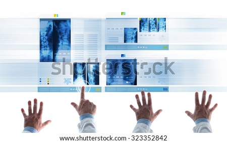 Professional medical team examining patient's medical records and x-ray on touch screen slides, a doctor is touching an icon and scrolling - stock photo