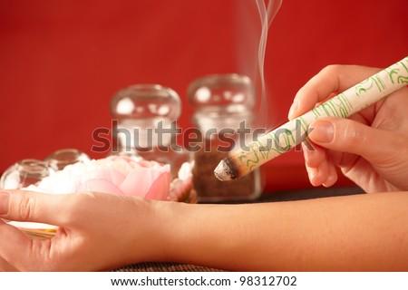Professional moxa sticks therapy. Hand with smoking moxa stick. - stock photo