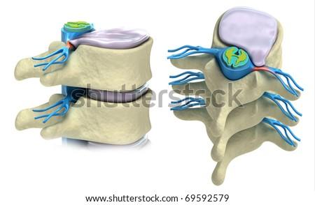 Prolapse of intervertebral disc isolated on white - stock photo