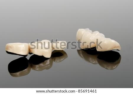 provisional dental bridges - stock photo