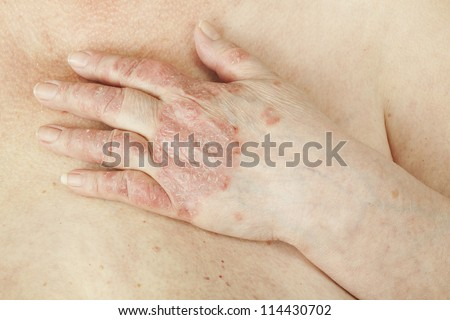 Psoriasis vulgaris is an autoimmune disease that affects the skin, detail photography for mainly medical magazines - stock photo