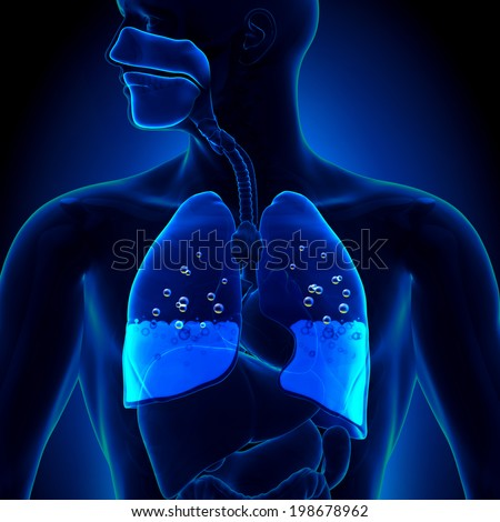 Pulmonary Edema - Water in Lungs - stock photo