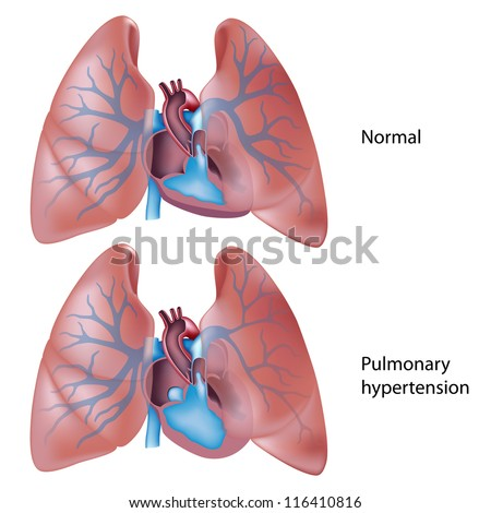 Pulmonary hypertension - stock photo