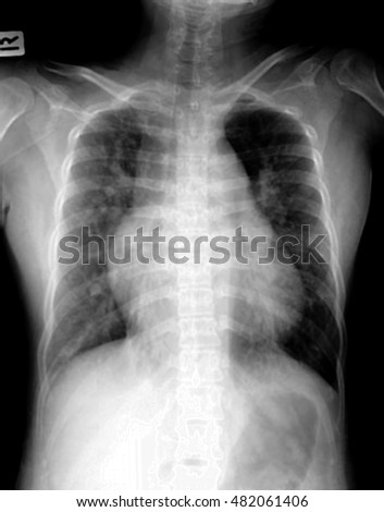 Pulmonary Tuberculosis . Chest X-ray