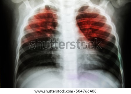 Pulmonary Tuberculosis Tb Chest Xray Show Stock Photo Royalty Free