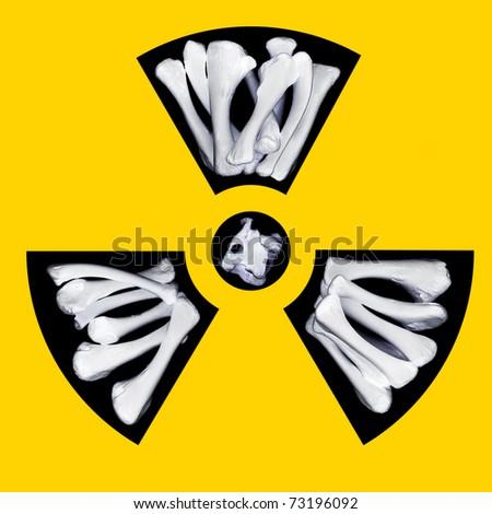 Radioactivity warning symbol with pale glowing bones - stock photo