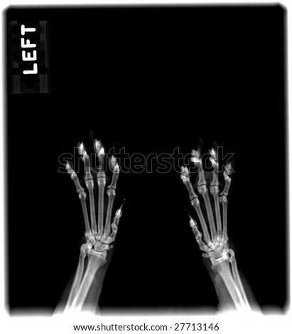 Radiograph of the paws of a cat - stock photo