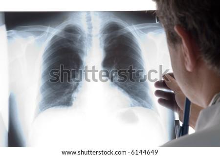 radiologist - stock photo