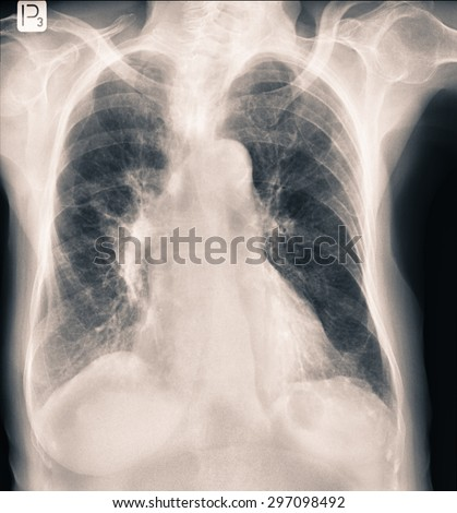 Radiology chest x-rays durring lungs Tuberculosis - stock photo