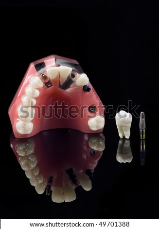 Real Human Wisdom tooth, Dental Implant and Plastic Teeth Model over black - stock photo