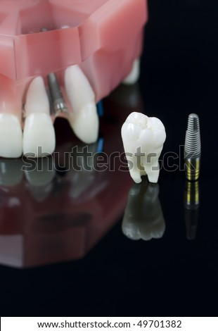Real Human Wisdom tooth, Dental Implant and Plastic teeth model. Shallow depth of field
