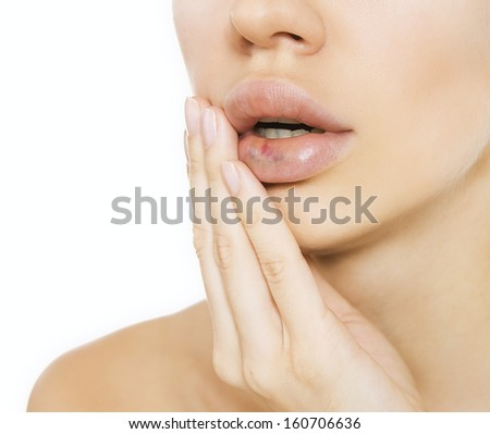 real lip bruise after injection (side effect) - stock photo