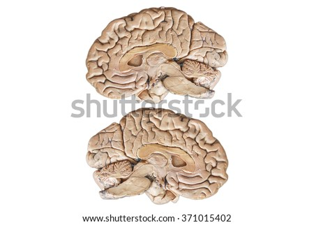 Real Two human half brain anatomy isolated on white background - stock photo