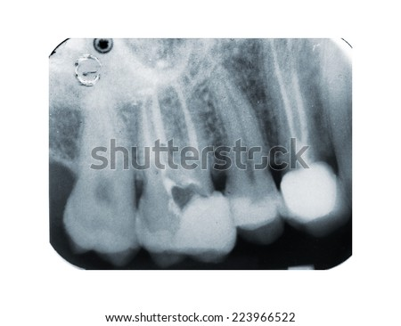 Real x-ray of devitalization tooth - stock photo