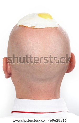 Rear view of male?s bald head with fried eggs on it - stock photo