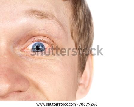 Red eye disease - stock photo