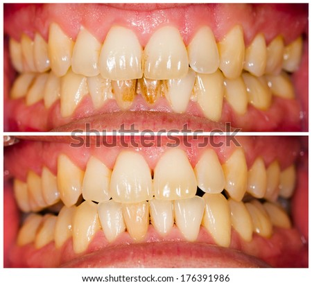 Removed plaque on incisors from patient's lower denture. - stock photo