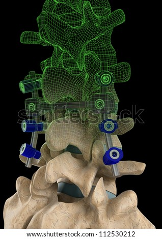 Rendering of a spine with a screw support system and a computer generated wire frame on a black background. - stock photo
