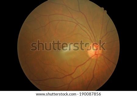 Retinal picture ,Medical photo tractional (eye screen) retinal  detachment of diabetes - stock photo