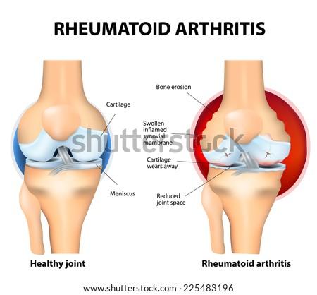 Rheumatoid Arthritisis an inflammatory type of arthritis that usually affects knees. Rheumatoid arthritis of the knee the auto immune disease. body's immune system mistakenly attacks healthy tissue. - stock photo