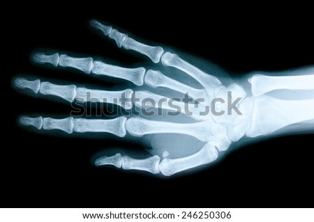 Right hand X-ray images to detect abnormalities of the hand. - stock photo