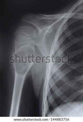 rotting upper humerus, X-ray - stock photo