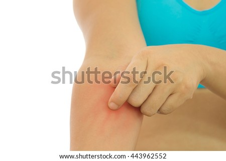 Roy rash red Itching of skin diseases in women using the hand-scratching. Concept with Healthcare And Medicine. - stock photo