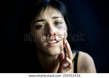 Sad woman feeling pain after being hit - stock photo