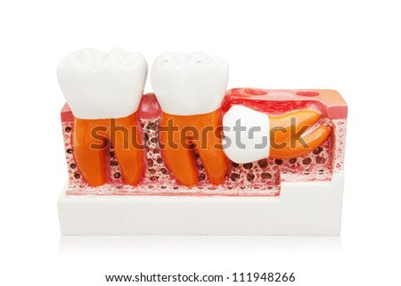 Sample of growth of dental. isolated on white - stock photo