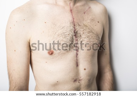Scar Open Heart Surgery Where Sternum Stock Photo Royalty Free
